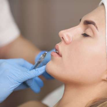 Hyaluronic Fillers