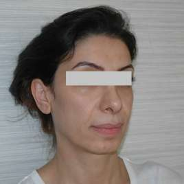 Chin Fillers For Round Face