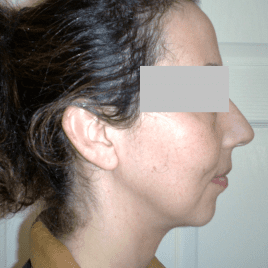 Chin Liposuction Before And After Pictures