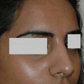 Reduction Rhinoplasty Before And After
