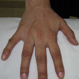 Fat Fillers for Hands After Effects