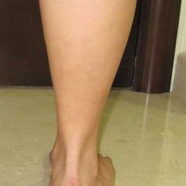 Fat Fillers Injection for Legs Before and After