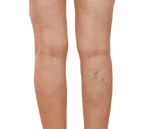 Sclerotherapy – Best Way to Get Rid of Varicose Veins & Spider Veins