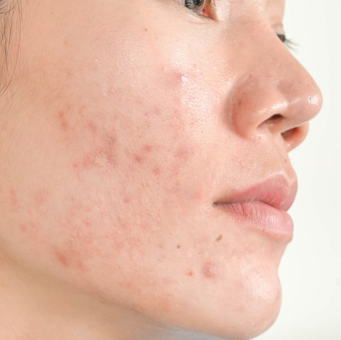 Say Goodbye to Acne Scars